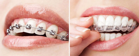 regular braces versus Invisalign