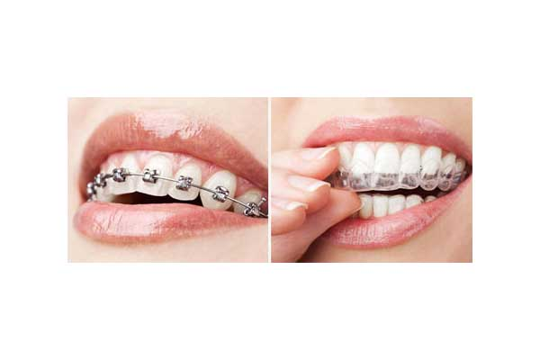 Regular Braces versus Invisalign Clear Braces