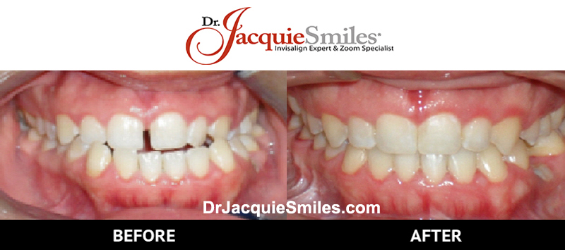 before-after-patient-dr-jacquie-0002