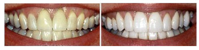 tooth whitening before and after patients in NYC