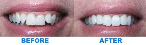 orthodontics-NY