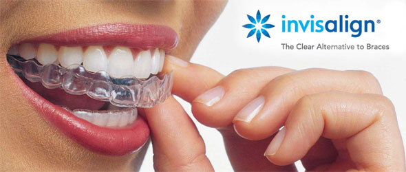 Invisalign Vs Braces Cost | www.imgkid.com - The Image Kid ...