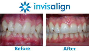 Dr. Jacquie is an Invisalign dental specialist in Woodbury, Long Island, NY.