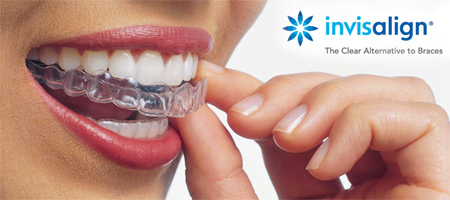 invisalign-clear-braces-Long-Island-NY