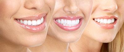 01-orthodontics-Monroe-NY