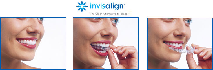 invisalign-clear-braces-in-New-Jersey