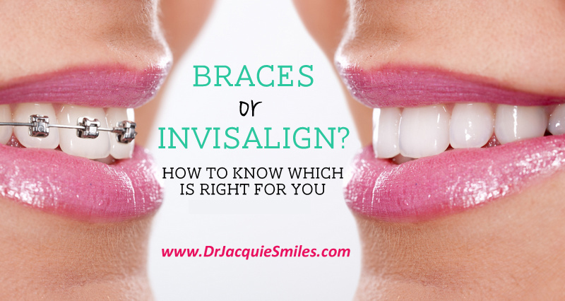 braces-or-invisalign-NYC-Dr-Jacquie-Smiles