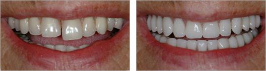 teeth-contouring-Monroe-NY