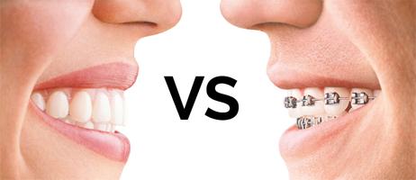 Invisalign-VS-traditional-braces-1