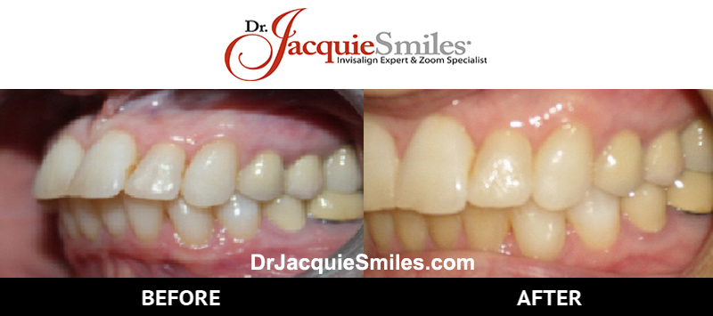 before-after-patient-dr-jacquie-000031