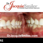 before-after-patient-dr-jacquie-00011