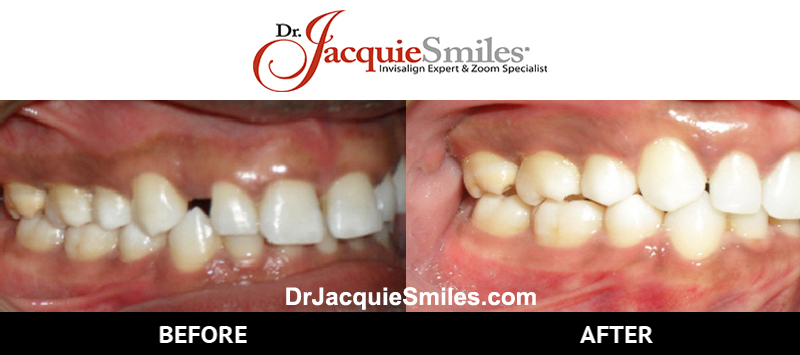 before-after-patient-dr-jacquie-jacquie-smiles-monroe-nyc