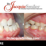 before-after-patient-dr-jacquie-002