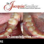 before-after-patient-dr-jacquie-02