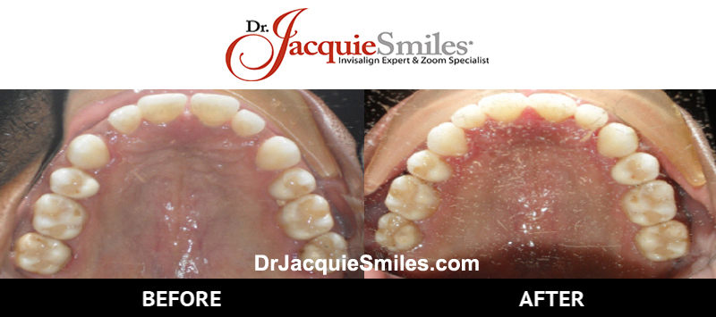 before-after-patient-dr-jacquie-1-2