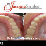 before-after-patient-dr-jacquie-2