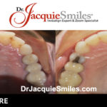 before-after-patient-dr-jacquie-3