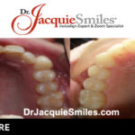 before-after-patient-dr-jacquie-4