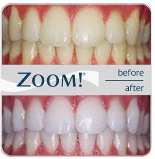 Zoom Whitening Dr Jacquiedr Jacquie