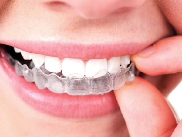 How much is Invisalign