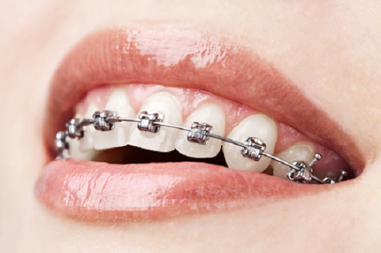 Braces in Midtown Manhattan