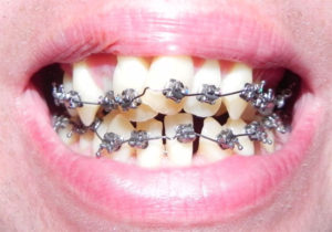 Blog apr 23 risks of do it yourself braces at home solutioingenieria Image collections