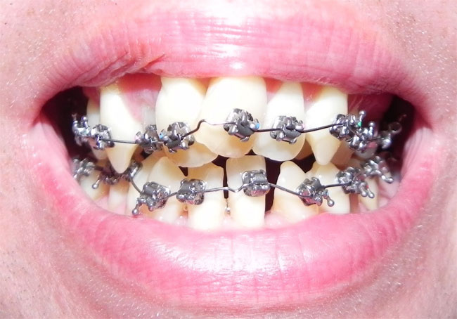 Risks of do it yourself braces at home solutioingenieria Image collections