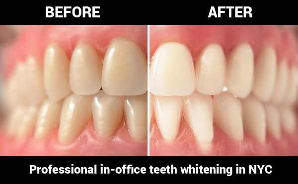 In Office Professional Teeth Whitening Cost In Nyc