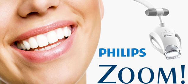 Remove Years Of Discoloration With In Office Teeth Whitening