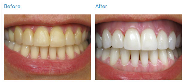 Cost Of Professional In Office Teeth Whitening Brands In Nyc
