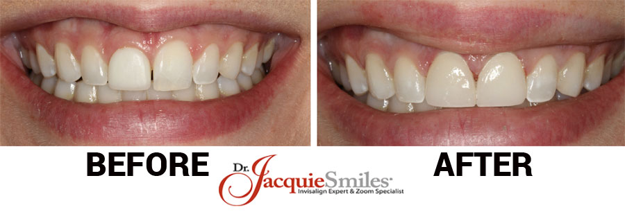 Does Insurance Cover Gum Contouring And Reshaping In Nyc