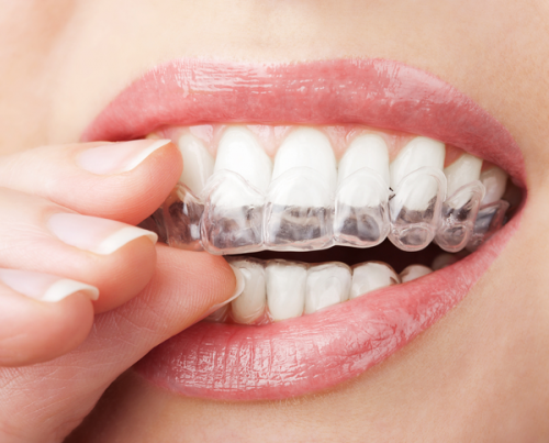 WHY Haven't YOU Had Invisalign Yet?