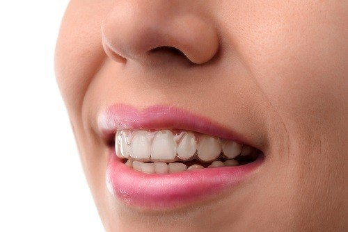 Patient Diaries: Maria's Experience With Invisalign