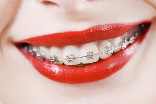 Dr. Jacquie Smiles' Has Options to Make Adult Braces Less Obvious